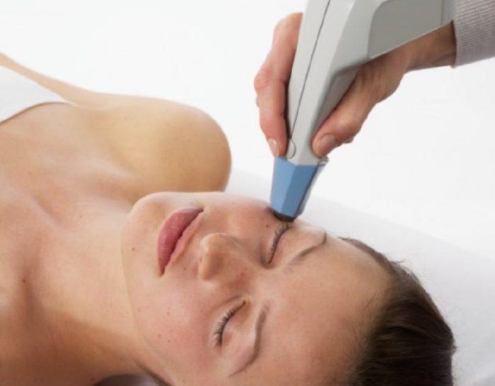 Exilis Elite Facial Treatments