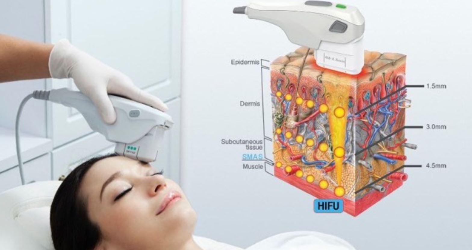 HIFU Treatment Banner Image