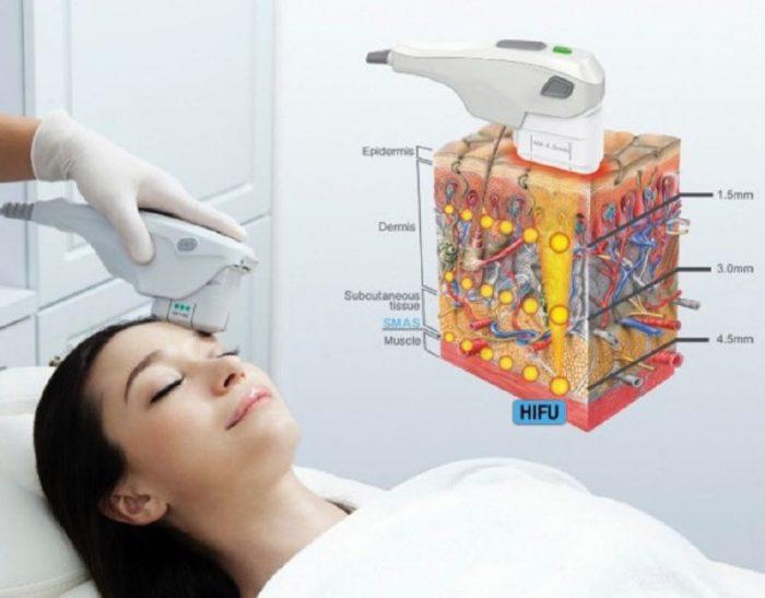HIFU Treatments